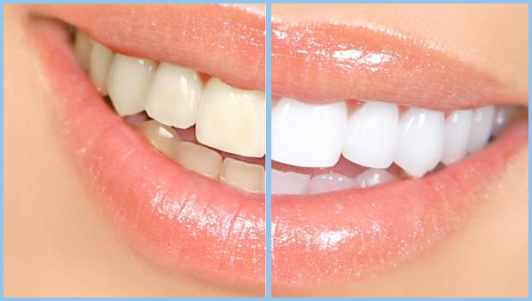 Teeth whitening Sherman Oaks