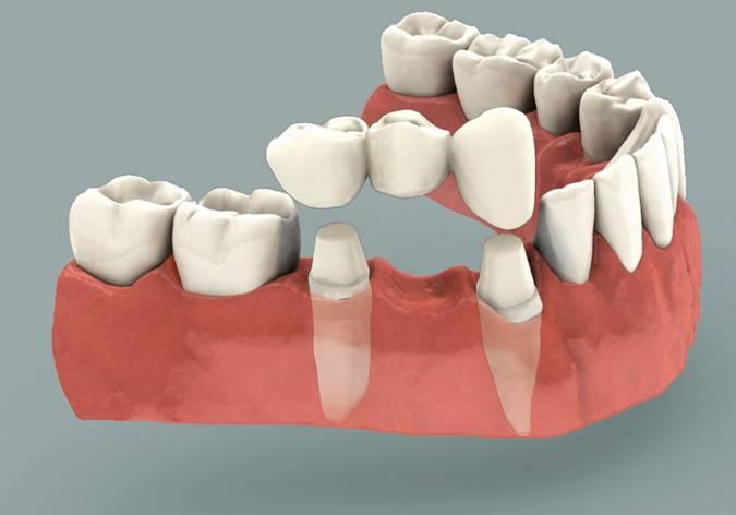 Dental Bridge Sherman-Oaks