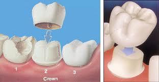 Dental Crown Sherman Oaks
