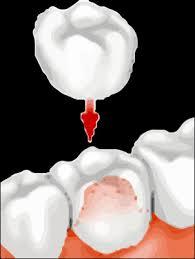 Dental Crown in Sherman Oaks CA