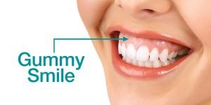 gummy smile treatment sherman oaks