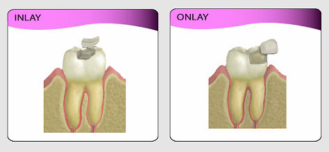 Dental Inlay Versus Onlay